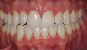 odontología general en Villanueva del Pardillo - troneras pequeñas