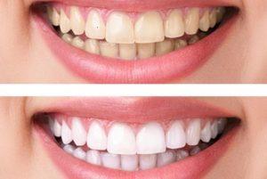 blanqueamiento dental - antes y despues