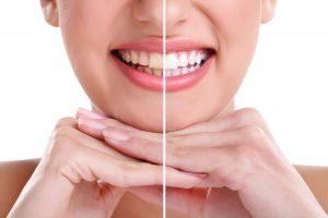 blanqueamiento dental - modelo