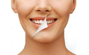 clinica dental cerca de Majadahonda - blanqueamiento dental
