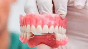 protesis dental - dientes