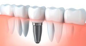 protesis dental - estructura del tornillo