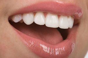 odontología estética en Villanueva del Pardillo - sonrisa