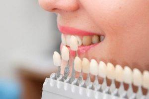 clinica dental cerca de Majadahonda - carillas de porcelana