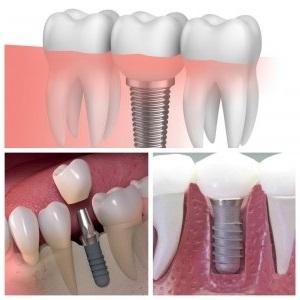 clinica dental cerca de Villanueva de la Cañada - implantología inmediata
