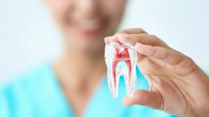 dentista cerca de Majadahonda - endodoncia