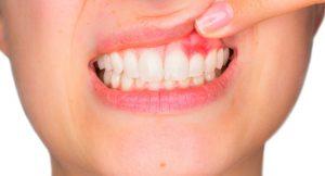 periodoncia en Villanueva del Pardillo - dientes inflamados
