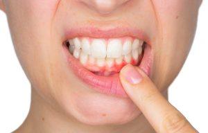 periodoncia en Villanueva del Pardillo - encias inflamadas