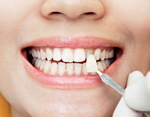 clinica dental cerca de Majadahonda - carillas composite