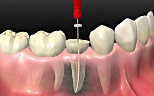 clinica dental cerca de Villanueva de la Cañada - endodoncia