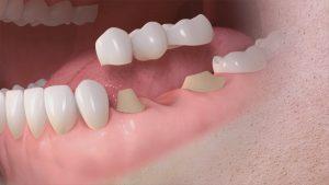clinica dental en Brunete - protesis dental