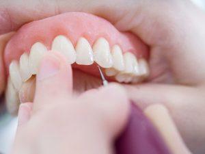 clinica dental en Brunete - trabajo con protesis