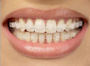 odontología estética en Villanueva del Pardillo - brackets de zafiro