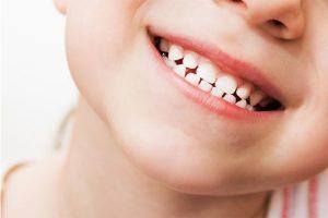 odontopediatria en Majadahonda - dientes de leche
