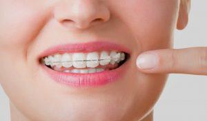 ortodoncia en Brunete - ortodoncia invisible