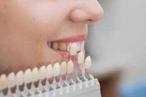 protesis dental en Majadahonda - estudio de dientes