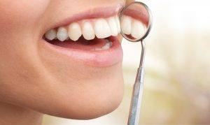 periodoncia en Villanueva del Pardillo - sonrisa con espejo