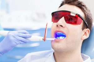 blanqueamiento dental led - paciente