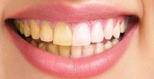 dientes amarillos - antes y después
