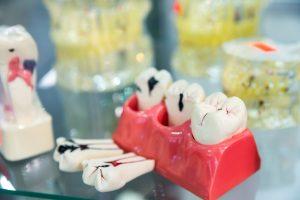 endodoncia en Brunete - diente con caries