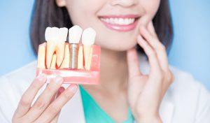 implantología y cirugía en Brunete - dientes protesicos