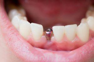 implantología y cirugía en Brunete - tornillo