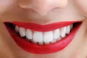 odontologia estetica en Majadahonda - labios rojos