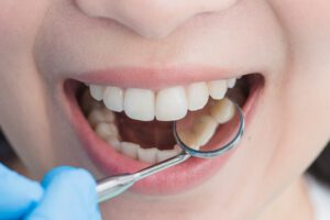 Clínica dental cerca de Brunete - Reflejo