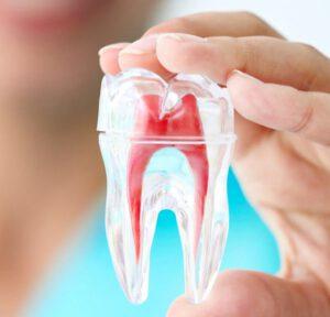 Endodoncia en Majadahonda - diente