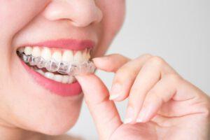 ortodoncia en majadahonda - invisible