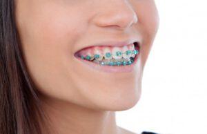 ortodoncia en majadahonda - sonrisa