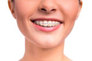 ortodoncia persona embarazada - ortodoncia