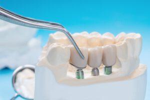 Prótesis dental en Majadahonda - Tornillos