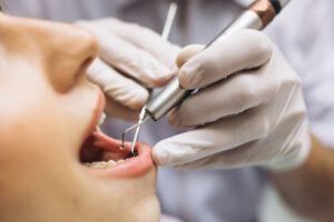 dentista cerca de majadahonda - paciente