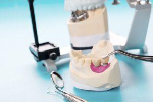 Implantologia y cirugia en majadahonda