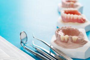 prótesis dentales en Villanueva de la Cañada - dientes