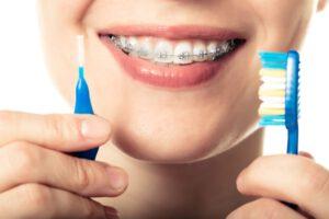 higiene con la ortodoncia