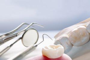 protesis dentales cerca de Majadahonda - aparatología