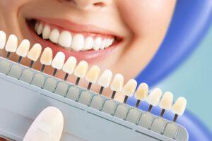 odontologia estetica majadahonda - dientes-