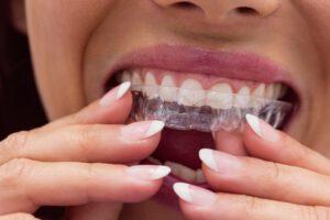 ortodoncia con ferulas en villanueva del pardillo - mujer-min