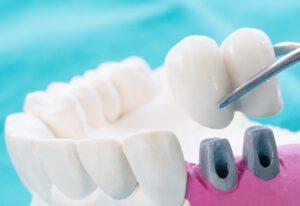 que es un puente dental - color blanco
