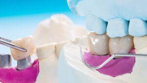 que es un puente dental - diseño