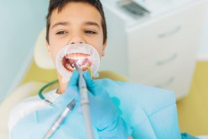 odontopediatria majadahonda - limpieza
