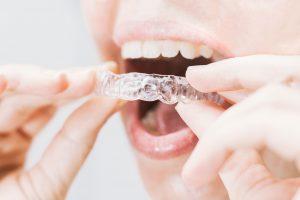 como limpiarse los dientes con retenedores - transparentes