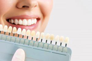 contamos en qué consiste el blanqueamiento dental - tipo de blanqueamiento-