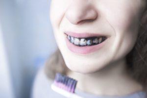 por qué no es bueno blanquear los dientes con carbon activo - dientes-