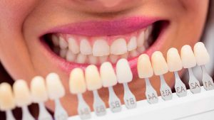 blanqueamiento-dental-en-majadahonda---evaluacion
