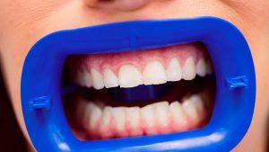 blanqueamiento-dental-en-majadahonda---preparación-min-