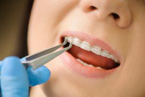 ortodoncia majadahonda - modificación-