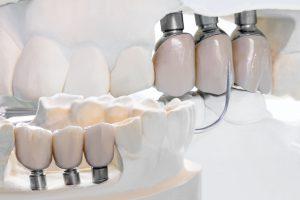 protesis dental brunete - prototipo-